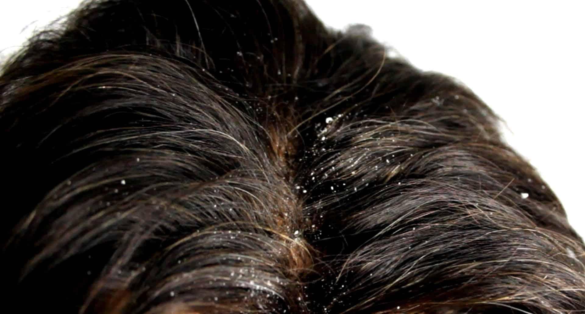 Le traitement avec le poivre rouge de la chute des cheveux