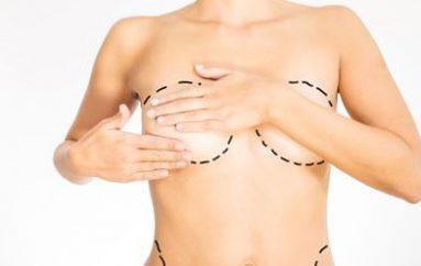 Augmentation mammaire : les résultats post-opératoires
